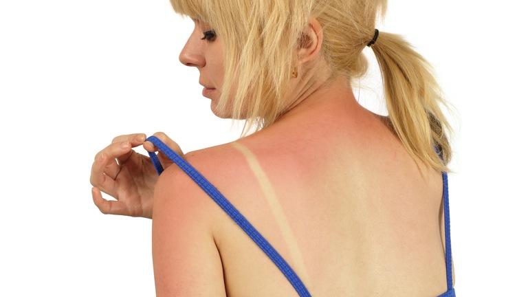 Что делать, если вы обгорели на солнце. Первая помощь